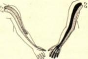 Le cervico brachialgie